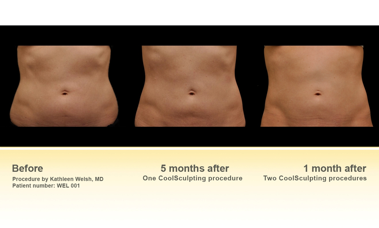 Coolsculpting Pictures To Pin On Pinterest