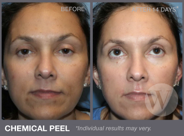 Chemical Peels Washington Dc And Chevy Chase Md