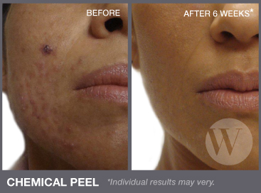 Chemical peels washington dc