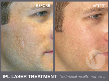 Captivating Washington Institute Of Dermatologic Laser Surgery Nice Design