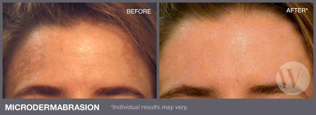 Microdermabrasion | Washington DC and Chevy Chase MD