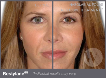 Restylane Washington Dc And Chevy Chase Md