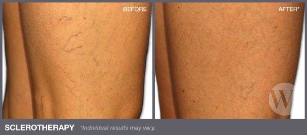 Sclerotherapy Washington Dc And Chevy Chase Md