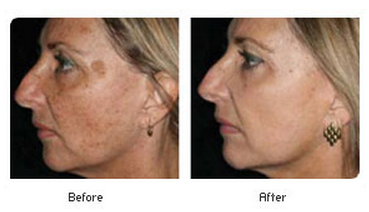 Dermatologic Lasers In The Treatment Of Aging Skin ...