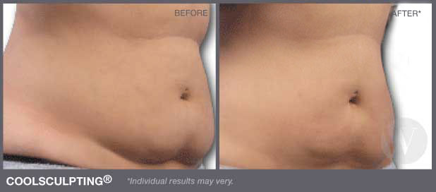 coolsculpting in dc