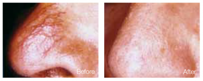 how to stop spider veins on nose