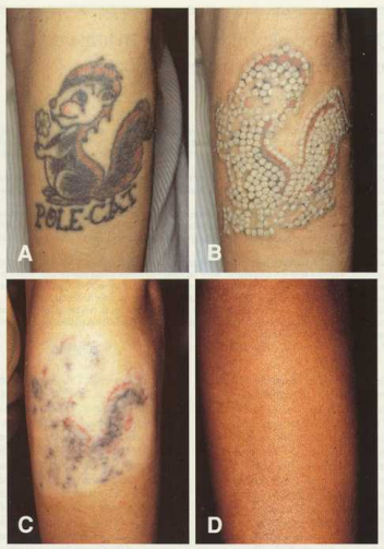 Tattoo removal washington dc and chevy chase md for Laser remove tattoo price