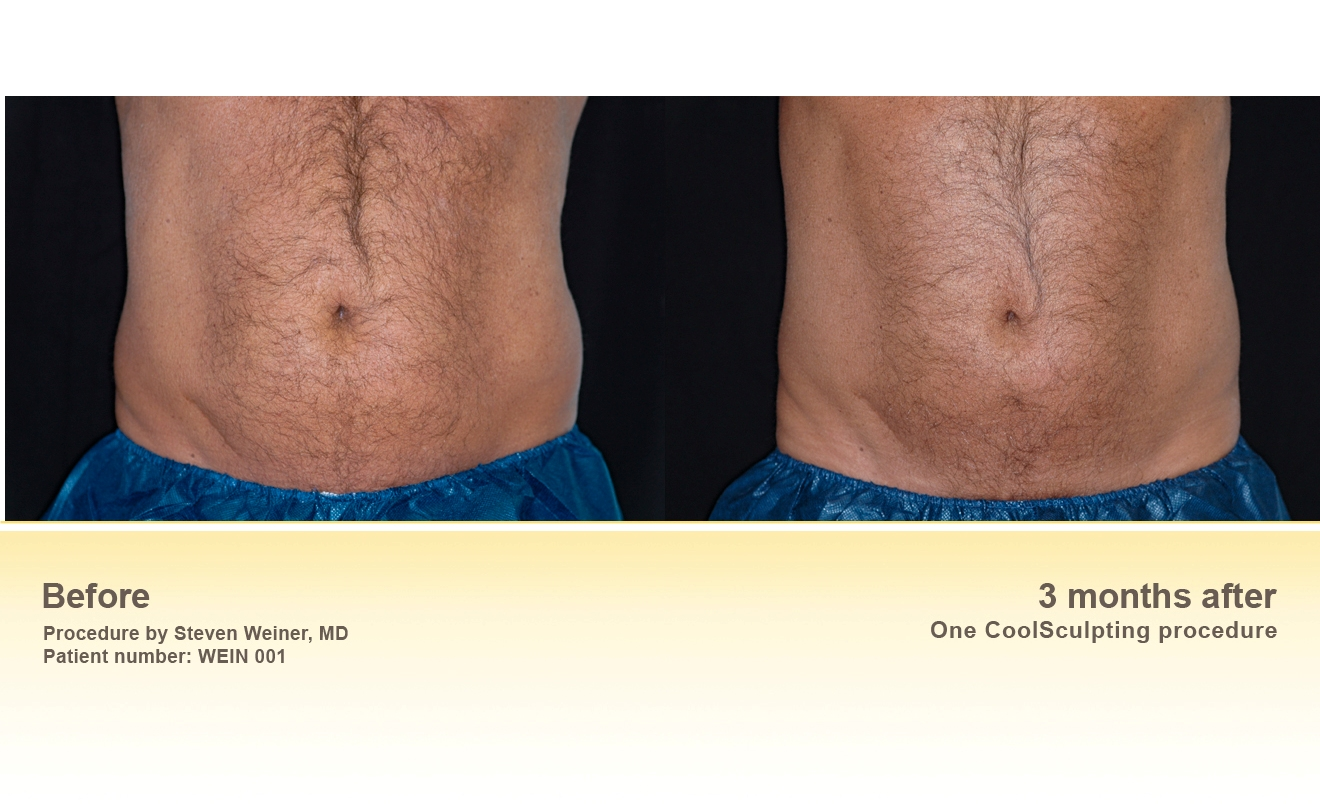 Winter Slimming With Coolsculpting