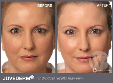 juvederm washington dc