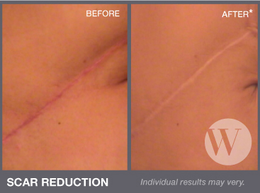 DC Scar reduction