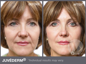 Juvederm in DC