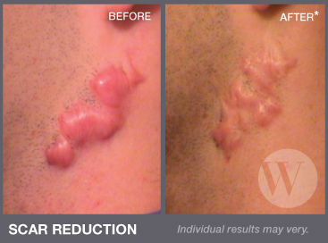 Scar revision washington dc and chevy chase md treating hypertrophic scars and keloids sciox Choice Image
