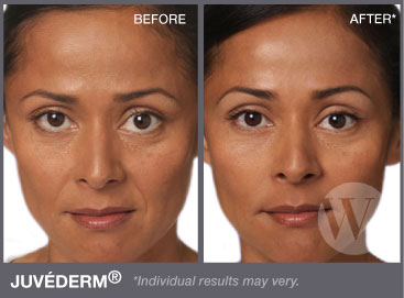 juvederm injections under eyes