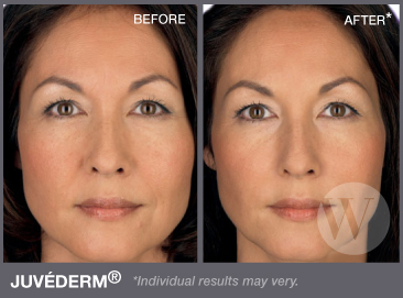 Juvederm Washington DC K Street