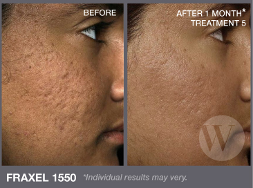 Acne Treatment Washington Dc Amp Chevy Chase Md