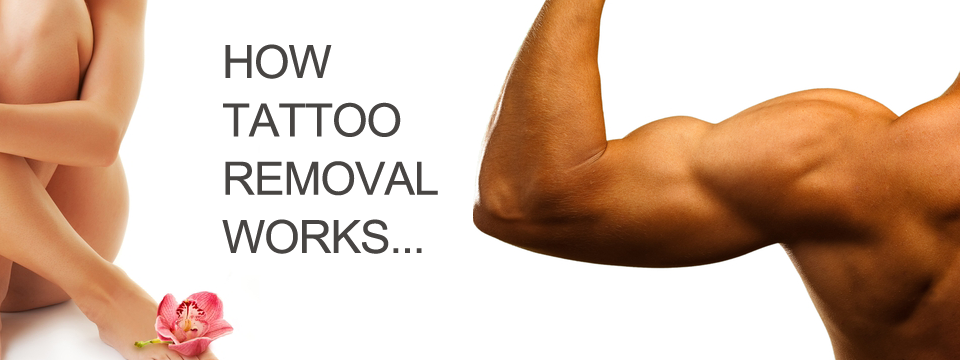 Tattoo removal for Tattoo removal products
