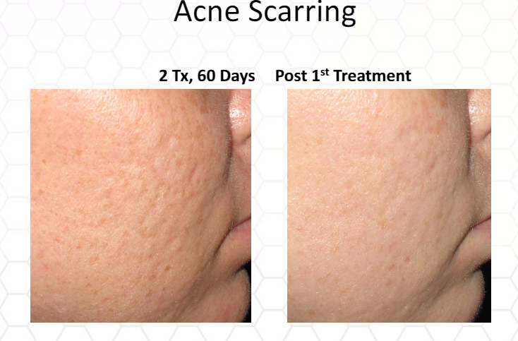 Microneedling | Washington DC and Chevy Chase MD