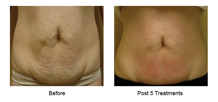 Cellulite | Washington DC and Chevy Chase MD