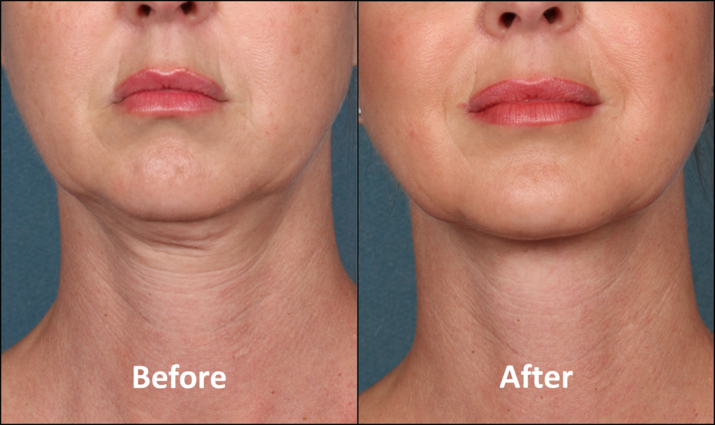 Neck Rejuvenation | Washington DC and Chevy Chase MD