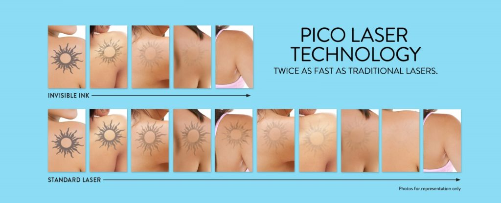 Picoway Laser | Washington DC and Chevy Chase MD